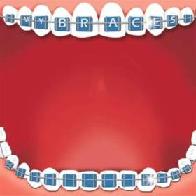 Braces Karen Foster Design 60530